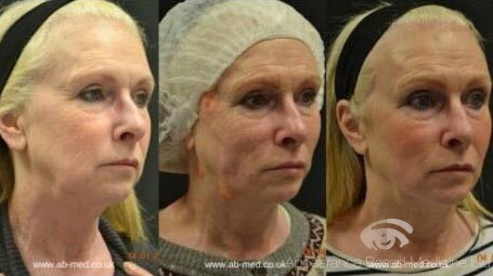PDO Threadlift is a facelift but without the surgery!