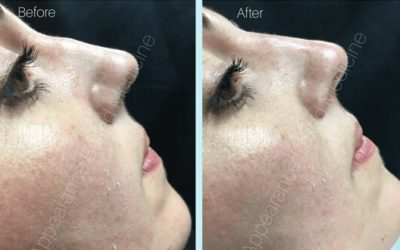 Non-Surgical Rhinoplasty… What exactly is it?