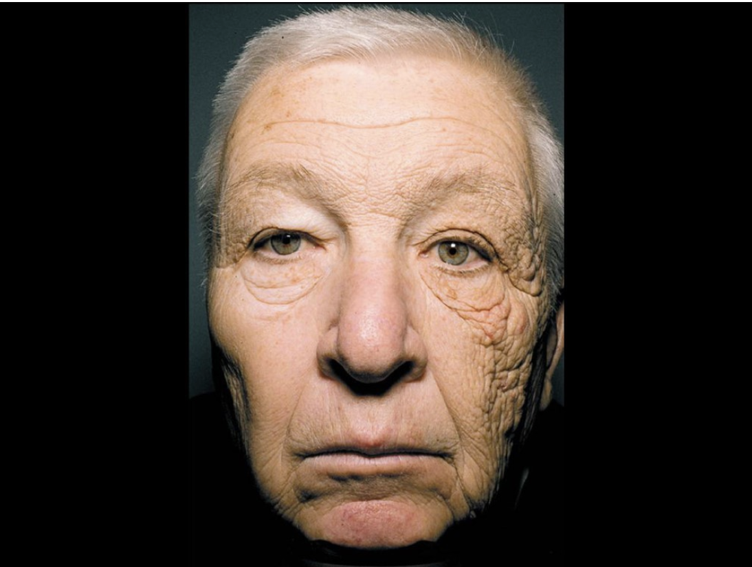 Trucker with sun damage on one side of face